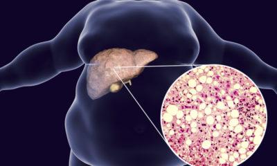 Masna jetra – što je i kako se liječi? 3 načina da obnovite vašu jetru